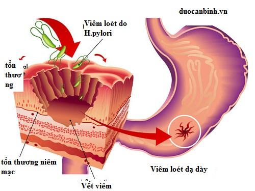 Phân biệt đau dạ dày cấp tính và đau dạ dày mãn tính